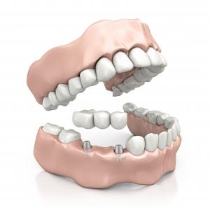 Zahnimplantat - KLEINERE ODER GRÖSSERE LÜCKEN ALS BRÜCKENERSAT | Zahnärzte am Papenberg
