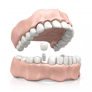 Zahnimplantat - EINZELZAHNLÜCKEN IM FRONT- ODER SEITENZAHNBEREICH | Zahnärzte am Papenberg